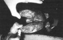 Cause, Prevention, and Treatment of Foot Rot in Cattle